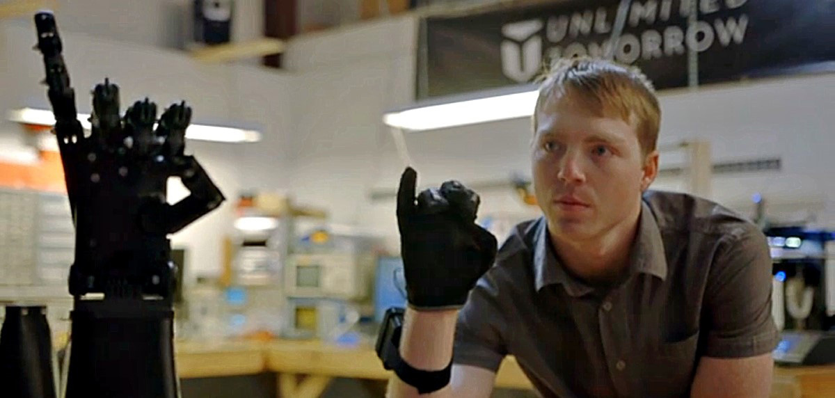 Custom designed 3D printed prosthetic arm